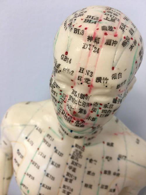 Acupuncture San Jose Integrative Medicine